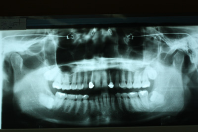 wisdom-tooth-woesEXTREME LEFT, LOWER JAW: THE FULLY GROWN WISDOM TOOTH