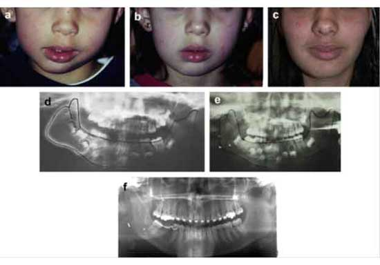 differential diagnosis between true hemifacial microsomiaand pseudo-hemifacial microsomia